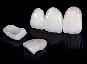 licówki porcelanowe lublin