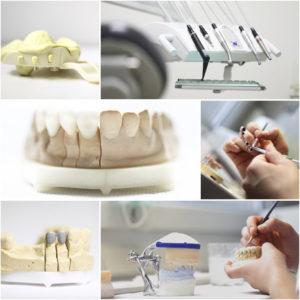 Estetyczna odbudowa zębów - Dentysta Lublin Tymodental